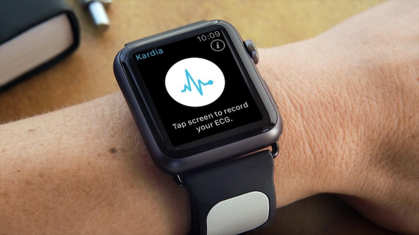 336746205fa AliveCor 'Kardia Band' Medical Grade EKG Analyzer for Apple Watch Receives  FDA Approval - MacRumors