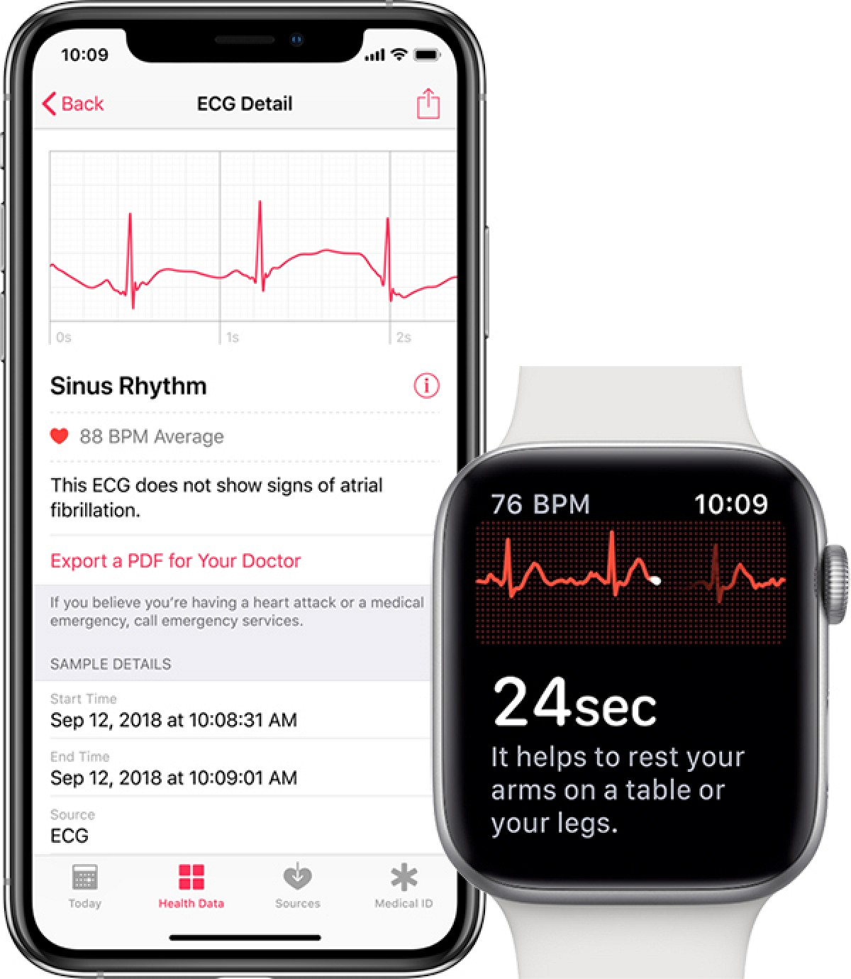 photo of watchOS 5.1.2 Possibly Coming Today With ECG App on Apple Watch Series 4 image